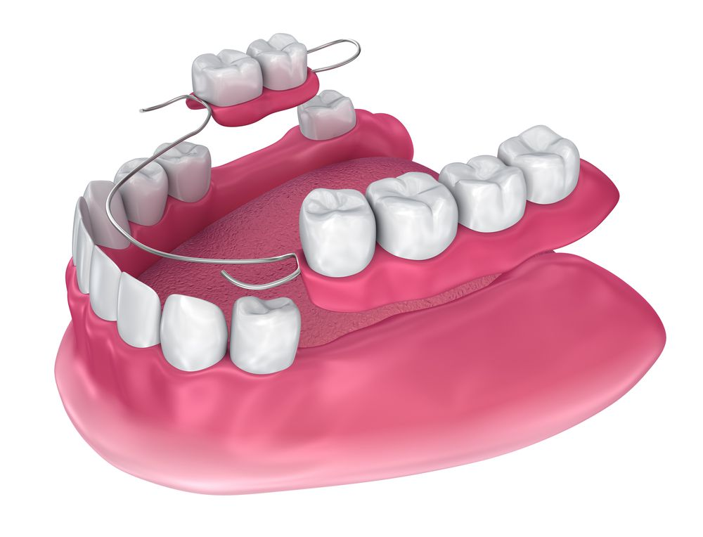 Partial Dentures Dentist